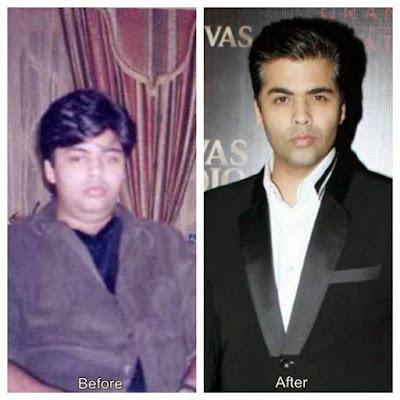 Karan Johar before and after weight loss