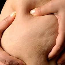 8 Façons Réalistes pour Réduire la Cellulite (Et Brûler les Graisses en même temps)