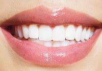 Comment Se Blanchir Les Dents Naturellement Pour Pas Cher