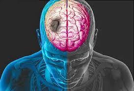 Obat Stroke Yang Parah, apakah stroke bisa sembuh total?, Cara Obat Stroke Ringan Paling Mujarab