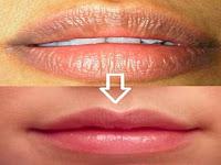 Cara Ampuh Mengatasi Bibir HItam Dengan 9 Bahan Alami Yang Mudah Di Dapat