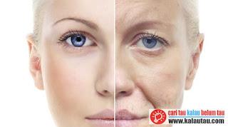 kalautau.com - Keriput penuaan pada wanita
