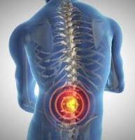 przyczyny bólu kręgosłupa ból pleców ból grzbietu dyskopatia