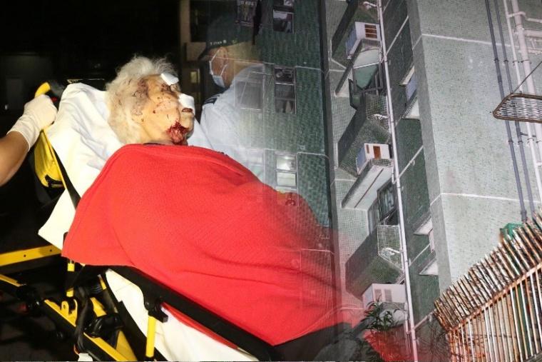 Disambangi Rampok,Nenek 90 Tahun di Chai Wan Berlumuran Darah, Uang HK $2500 Raib