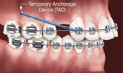 3 lý do nên bọc sứ thay vì niềng răng -3