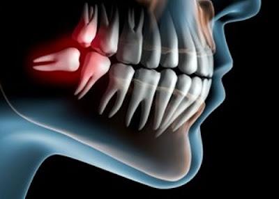 răng khôn bị sâu có trám được không -5