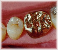 what is the value of a gold tooth crown
