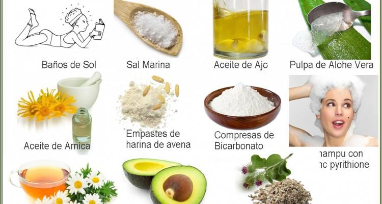 Remedios populares para la psoriasis