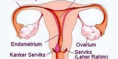 Ketahui 9 Gejala Umum Kanker Leher Rahim Ini (Serviks)