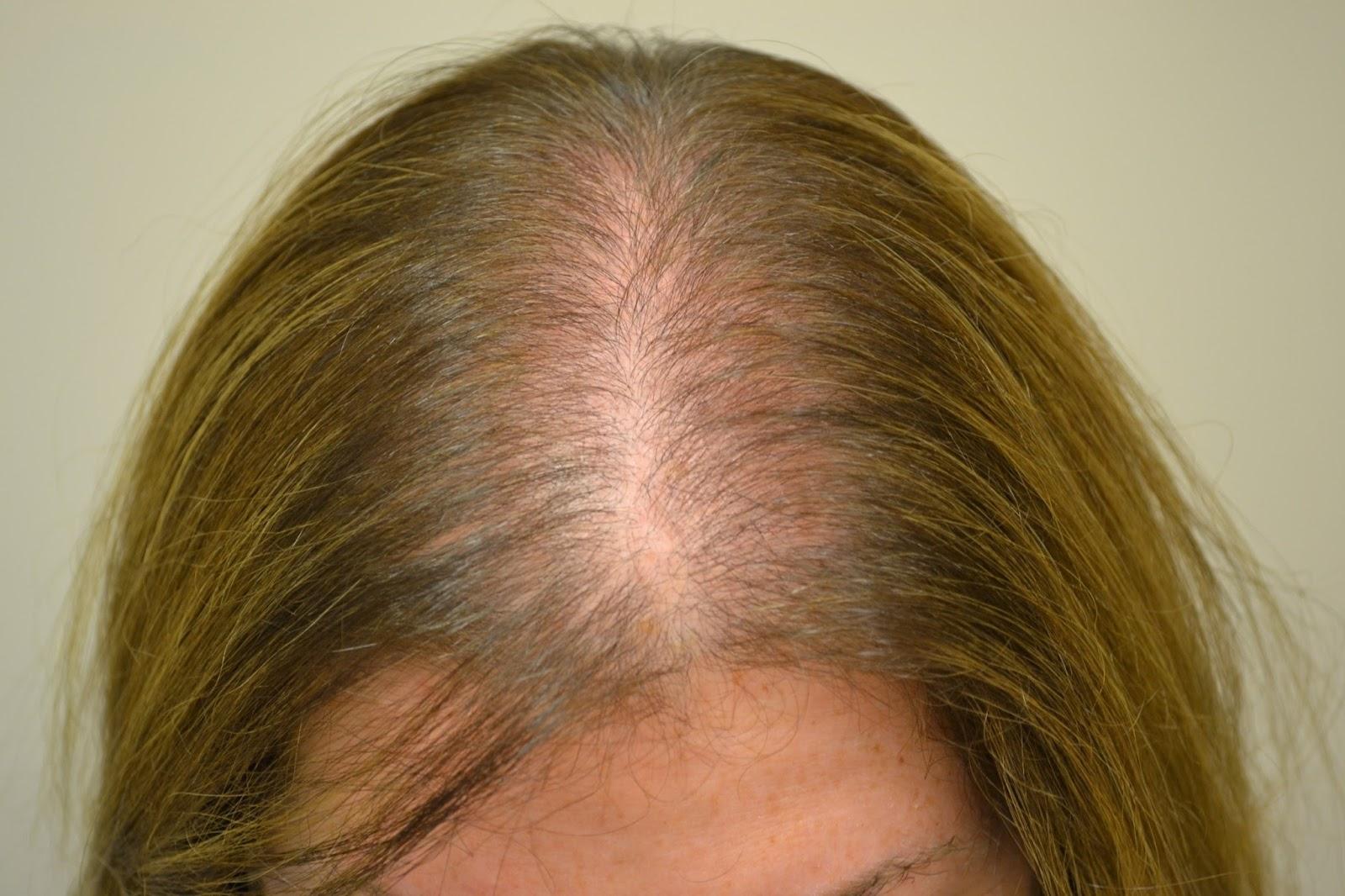 Contra la caída de los cabello y su crecimiento