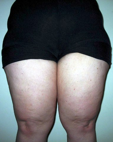 Lose Outer Thigh Fat 29