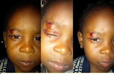 Dad of 2 year old girl expelled by school after her parents reported injury on her face, writes to Lagos Govt (photos)