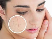 Cara Alami Merawat kulit Wajah Yang Kering
