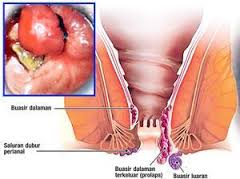 BAB dibarengi keluar darah serta perut kiri bawah nyeri