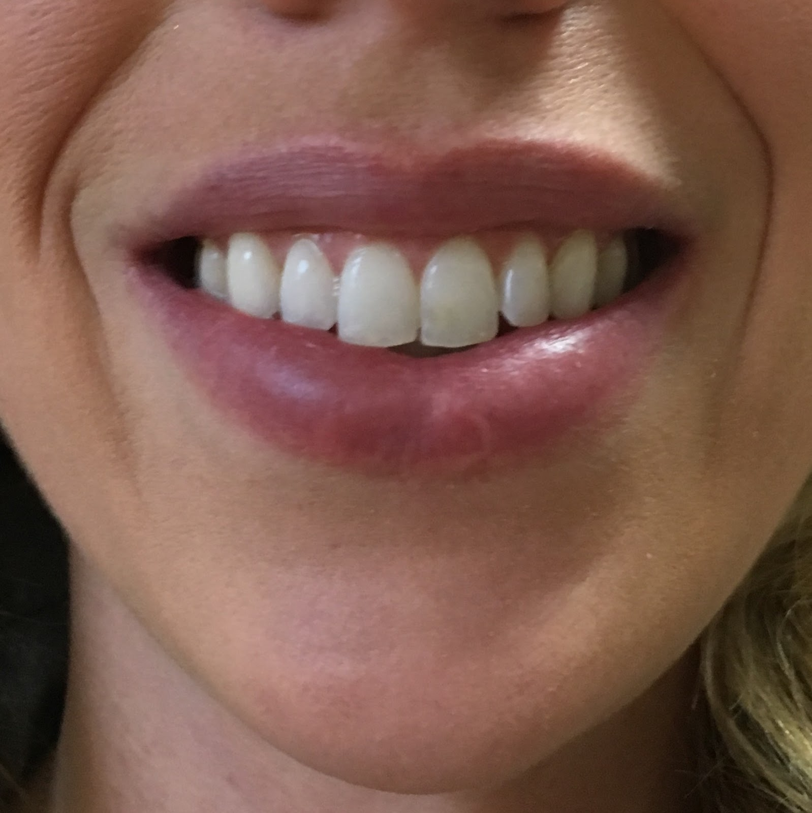 Smile Brilliant Teeth Whitening Impressions Before