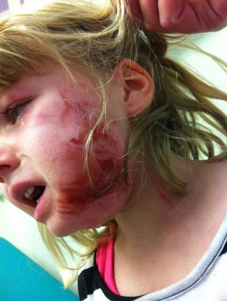 See How a Girl's Face Was Left Battered After Plane Airbag Exploded in Her Face During Flight (Photos)