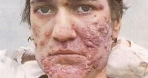 Pimple 4