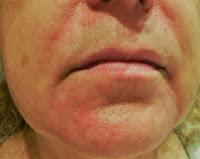 brote de dermatitis seborreica en la cara