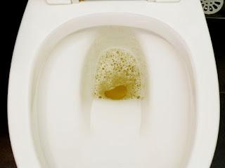 প্রস্রাবে ফেনা হওয়ার কারন ও প্রতিকার-The cause and remedy for urine foam
