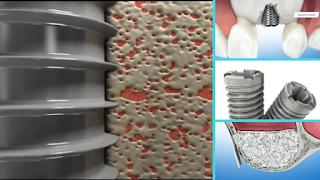 regeneração óssea