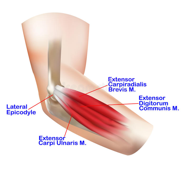 SAMARPAN PHYSIOTHERAPY FITNESS & REHAB. CLINIC: Tennis Elbow :