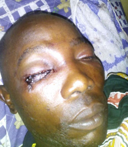 Graphic: For questioning them over abuse of civilian, soldiers pluck FRSC official's right eye
