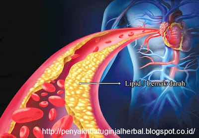 Cara Mengobati Penyakit Lemak Darah Tinggi