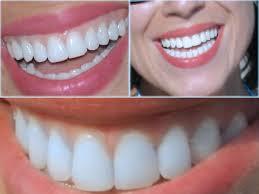 Diş Protezi Nedir? Türleri Nelerdir?