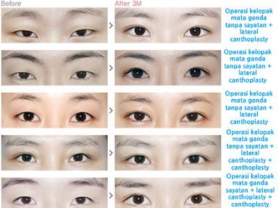 Foto sebelum dan sesudah operasi plastik mata