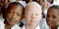 Pengertian Albinisme