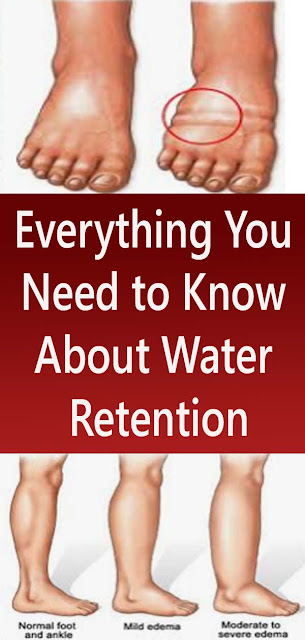 Everything You Need to Know About Water Retention#NATURALREMEDIES