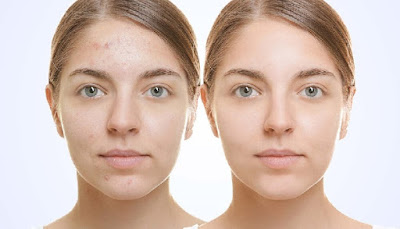 miracle acne cure home for your skin