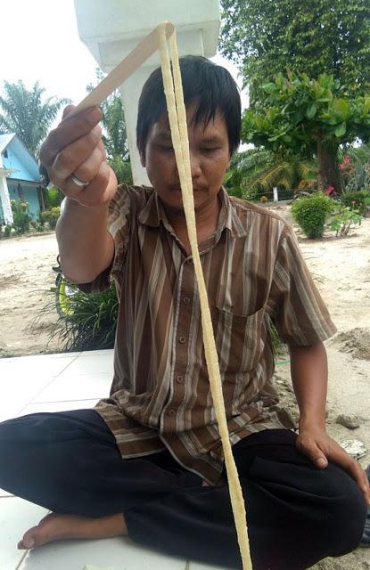 Cacing pita yang ditemukan dari dalam perut warga Simalungun.