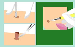 วิธี Punch excision