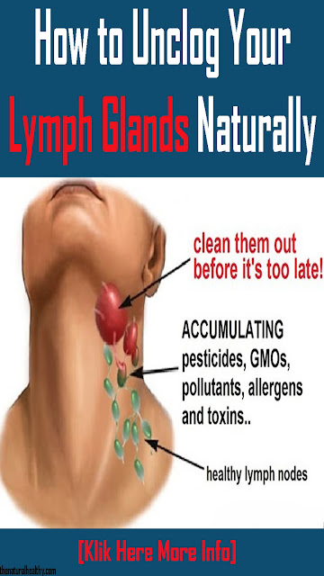 Step by step instructions to Unclog Your #Lymph #Glands #Naturally #Health #Remedies