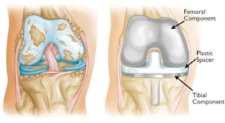 http://mahiclinic.com/total-knee-replacement-surgery/index.html