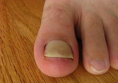 Toenail Fungus Nail Falling Off - This Is What To Do!