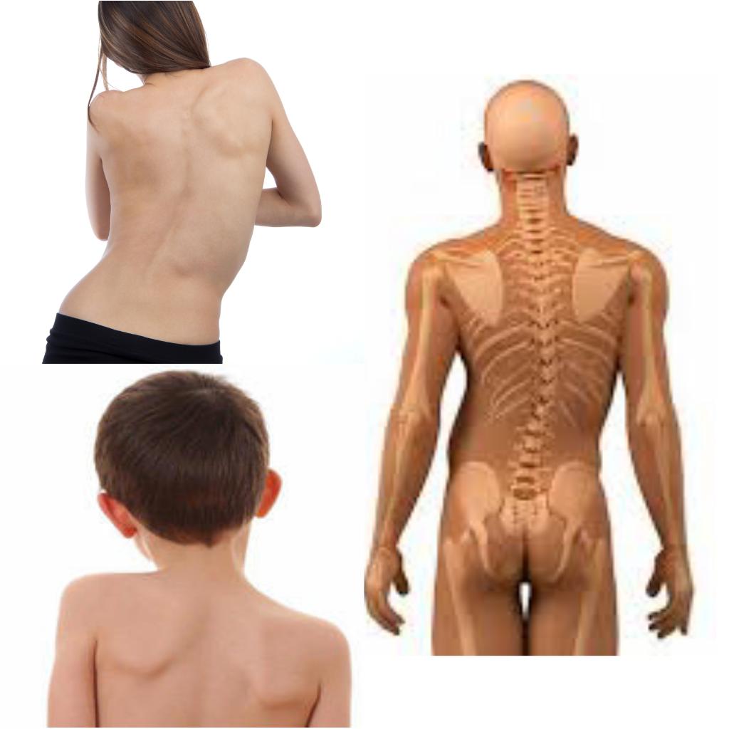 Fisioterapia para todos: DESBALANCE POSTURAL