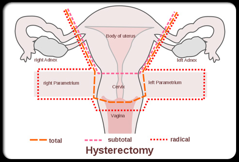 Sex Life After Hysterectomy 39