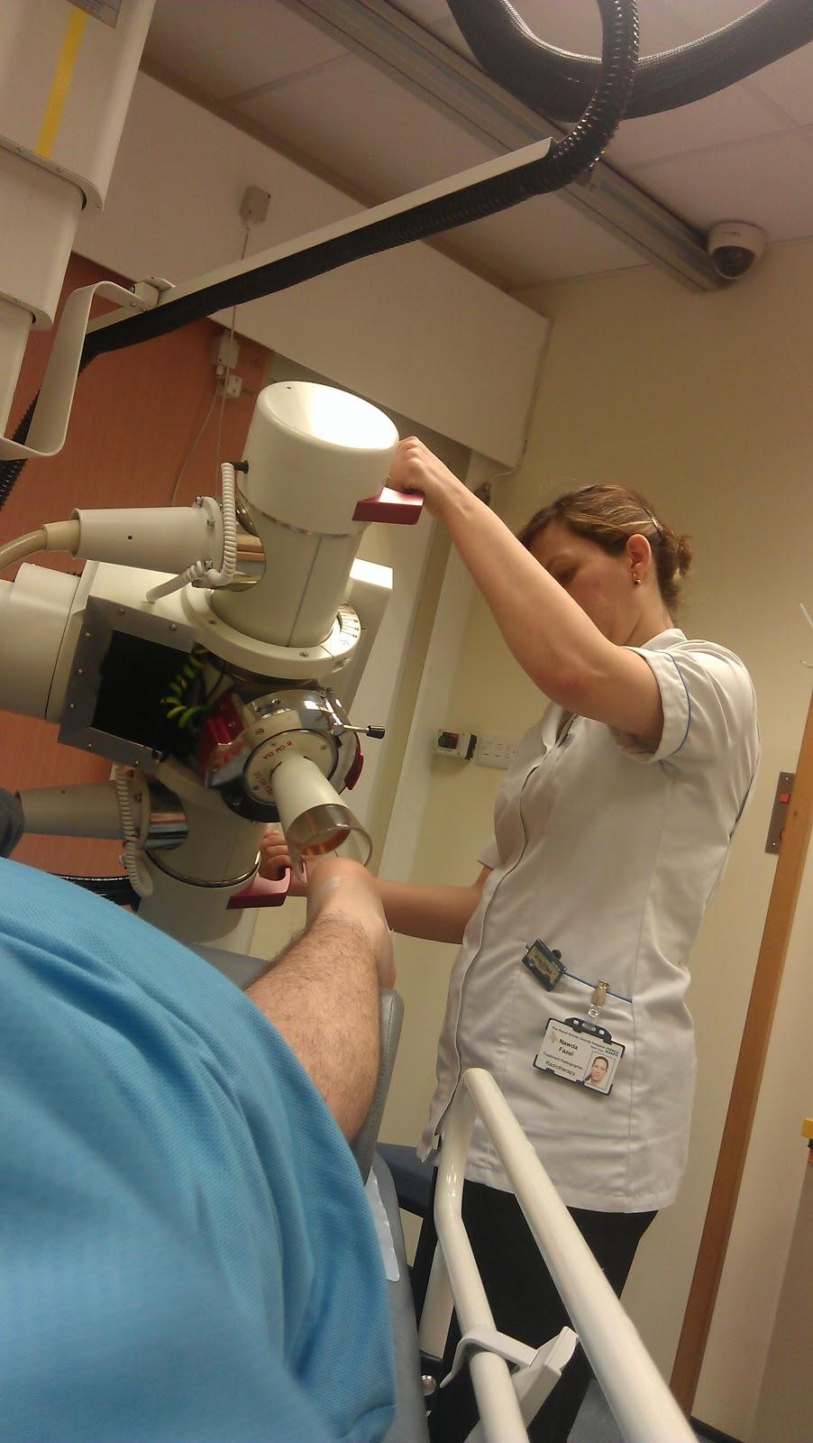 Ledderhose Disease Blog Plantar Fibroma A Real Pain In The Foot