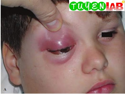 Young boy with periorbital edema, erythema, chemosis, proptosis, and restricted extraocular mobility from superior orbital abscess.