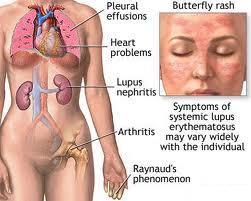 Cara Menangani Penyakit Lupus