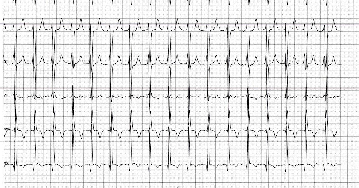 Ecg Rhythms Atrial Tachycardia Is Easier To Catch In