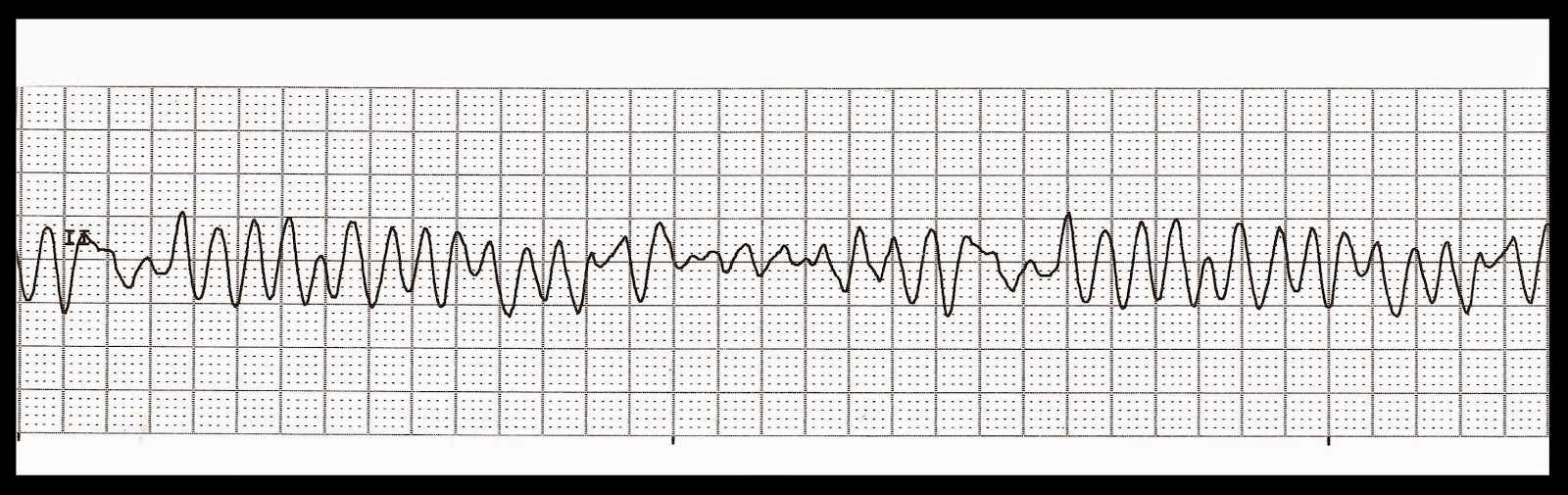 Float Nurse: EKG Rhythm Quiz 230