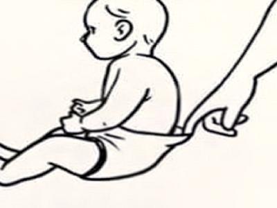 Gambar Cara Cepat Mengobati Diare Pada Anak
