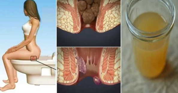 This Ingredient Found In Your Kitchen Will Cure Your Hemorrhoids In 24 Hours!