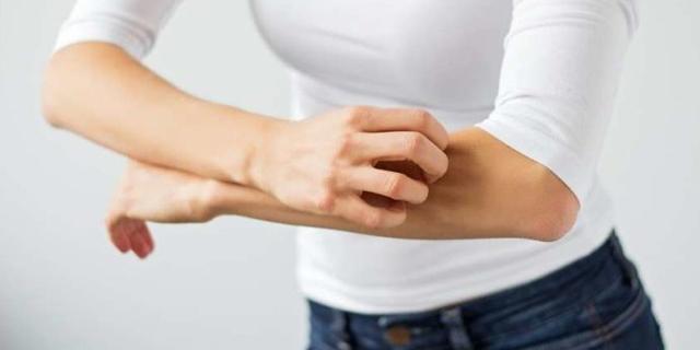 Pliegues colgantes gastrectomia perdida de peso