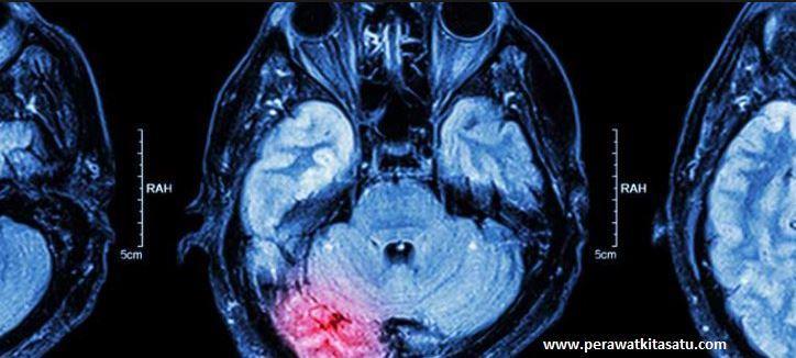 Skor Baru untuk Memprediksi Kematian Stroke Dini, CT Scan Otak, CT Scan Stroke