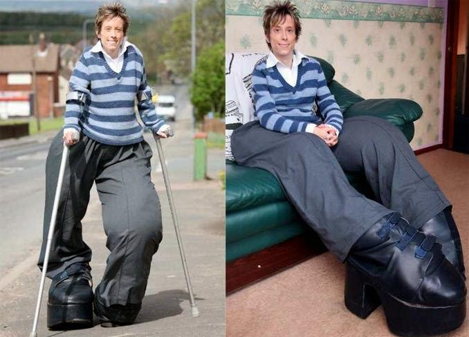 Woman Giant Legs 20