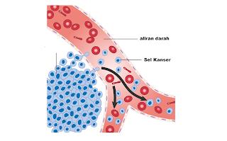 Simtom, Punca Punca Dan Rawatan Kanser Darah